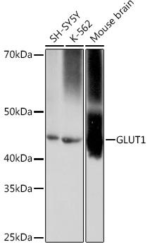 Anti-GLUT1 Antibody