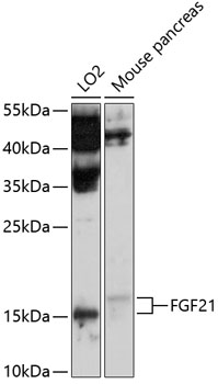 Anti-FGF21 Antibody (CAB10368)