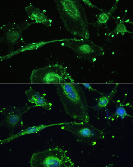 Anti-TREM2 Antibody (CAB10482)