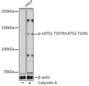 Anti-phospho-LATS1-T1079/LATS2-T1041 Antibody (CABP0912)