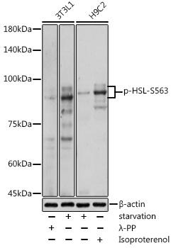 Phospho-LIPE-S563 pAb (CABP0851)
