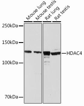 HDAC4 Rabbit Monoclonal Antibody