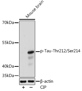 Anti-Phospho-Tau-Thr212/Ser214 Antibody (CABP1126)