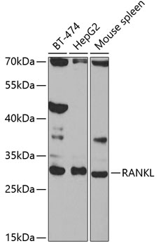 RANKL Rabbit Polyclonal Antibody (CAB2550)