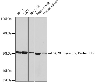Anti-HSC70 Interacting Protein HIP Antibody (CAB9567)