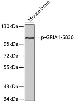 Anti-Phospho-GRIA1-S836 Antibody (CABP0356)