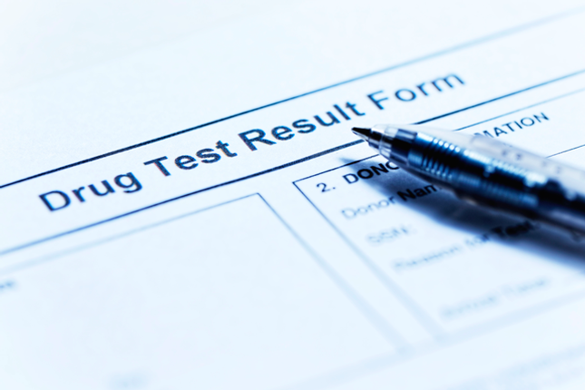 Will CBD Oil Show Up on a Drug Test?