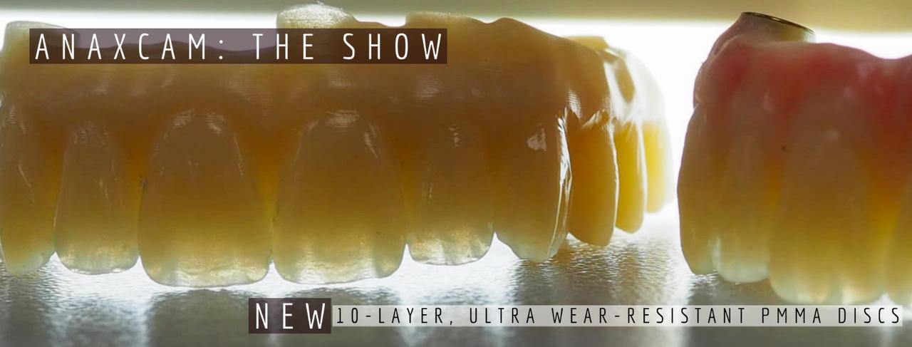 anaxCAM: The Show (10-layer PMMA)