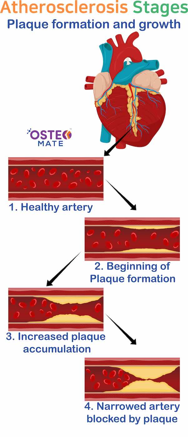 osteo-mate-atherosclerosis-steages-advanced.jpg