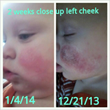 Eczema Testimonial - Tallow Balm