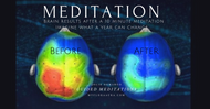 What are the Benefits of Guided Meditation?
