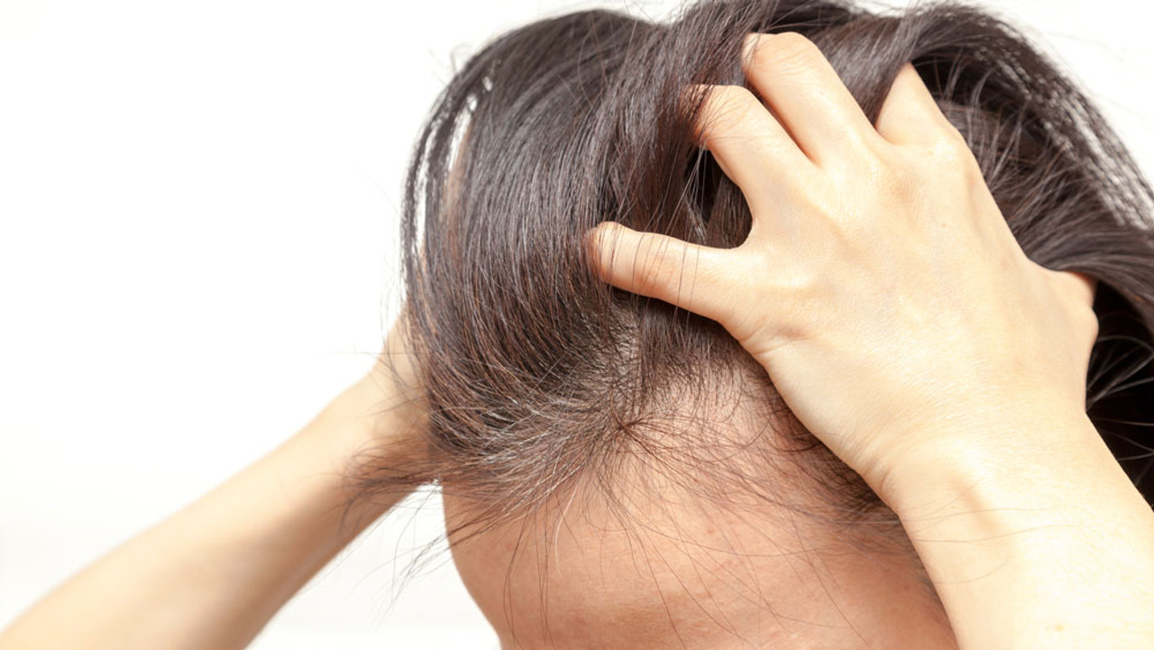 Best Shampoos for Itchy Scalp