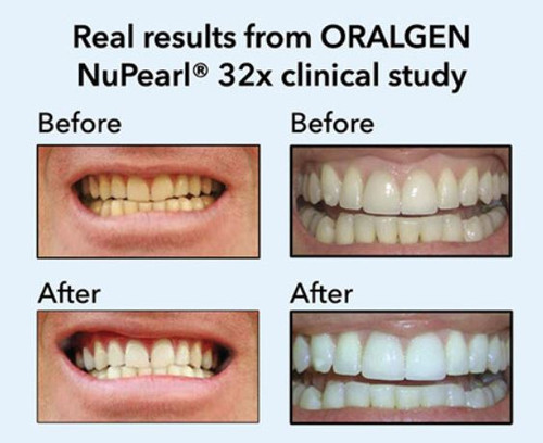 Oralgen NuPearl 32X Sensitive Teeth Whitening Kit for Sensitive Teeth (Peroxide Free)