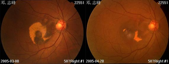 mzs-eye-1.jpg