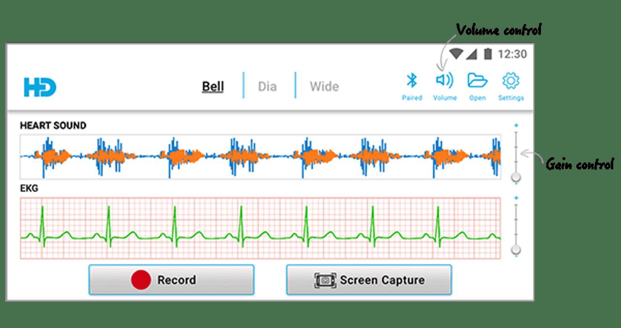 HD Steth with ECG