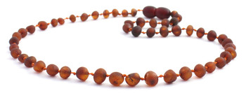 Cognac, Teething, Amber, Necklace, Children, Jewelry, Raw, Unpolished, Baroque 2