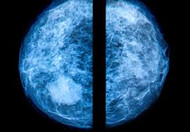 Breast Cancer Prevention: Mammograms Yes or No?