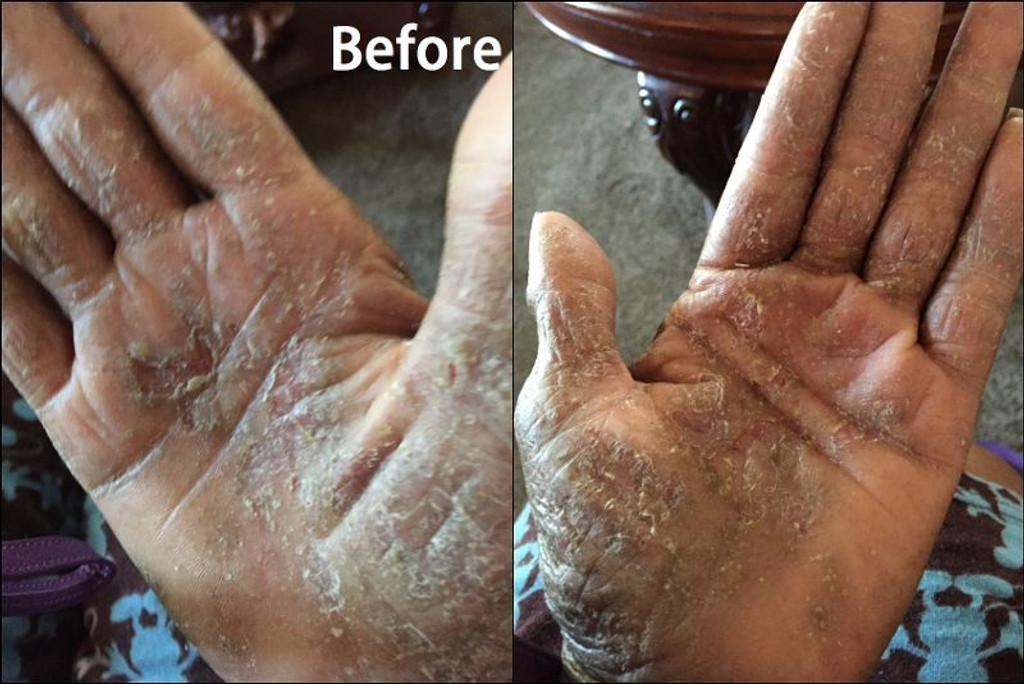 Karen's hands before using Nurturing Naturals eczema jam