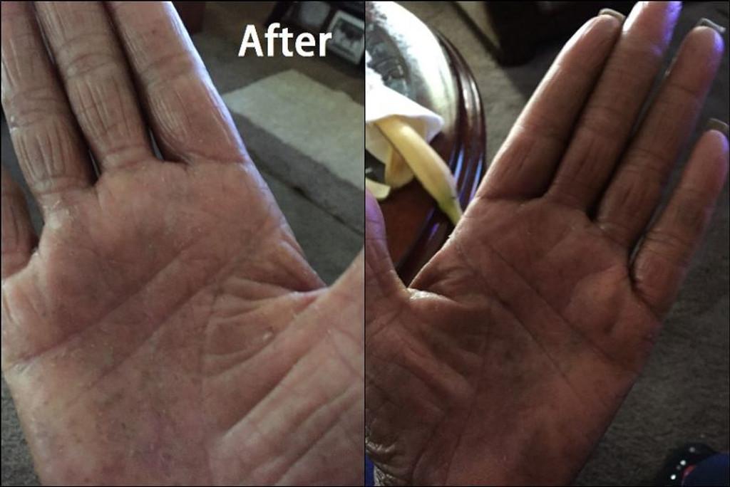 Karen's hands after using Nurturing Naturals eczema jam