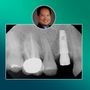Hands-On Course | Immediate Implant Placement | 8 CEU (Continuing Education Unit)