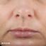 Skinceuticals Hyaluronic Acid Intensifier