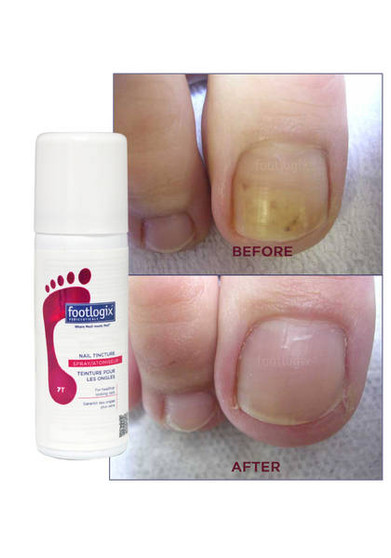 Footlogix Toe Tincture