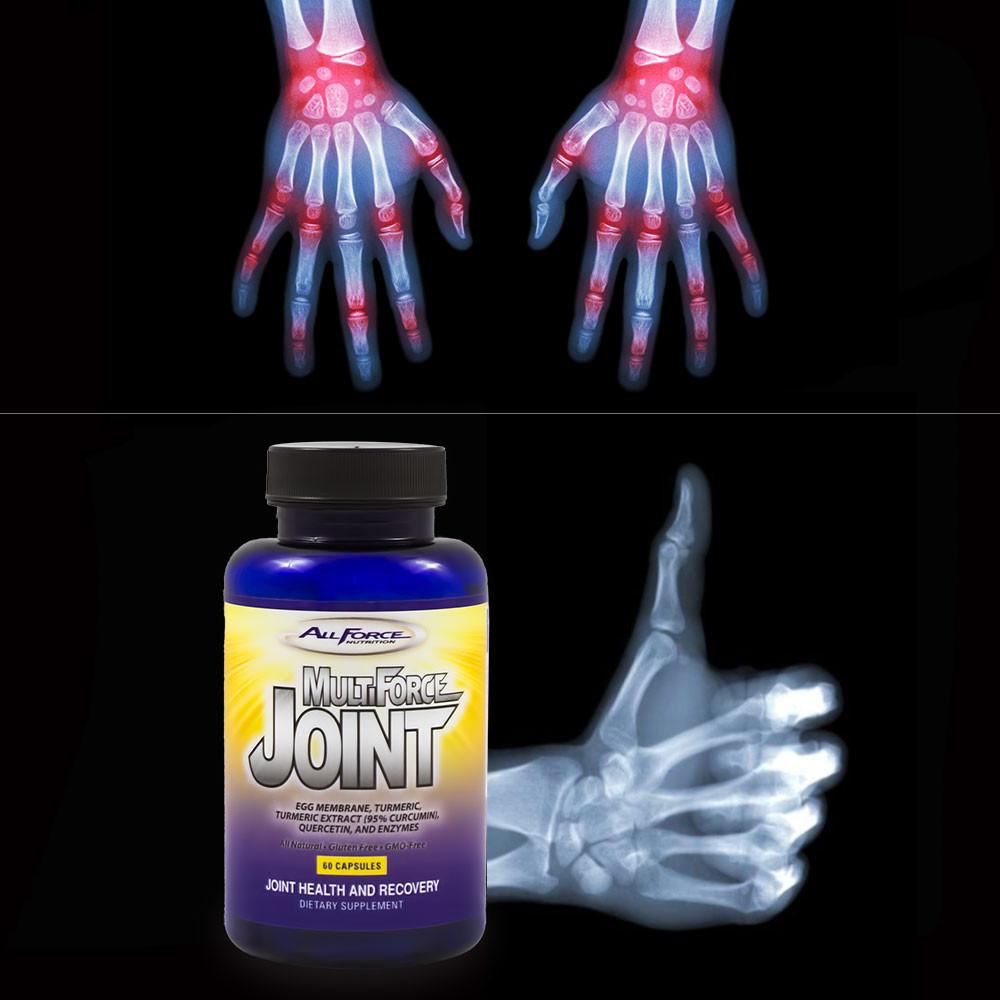 Glucosamine & Chondroitin Alternative Joint Remedy