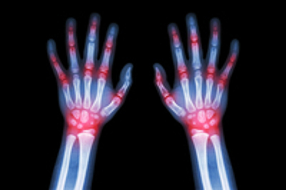 May = National Arthritis Month