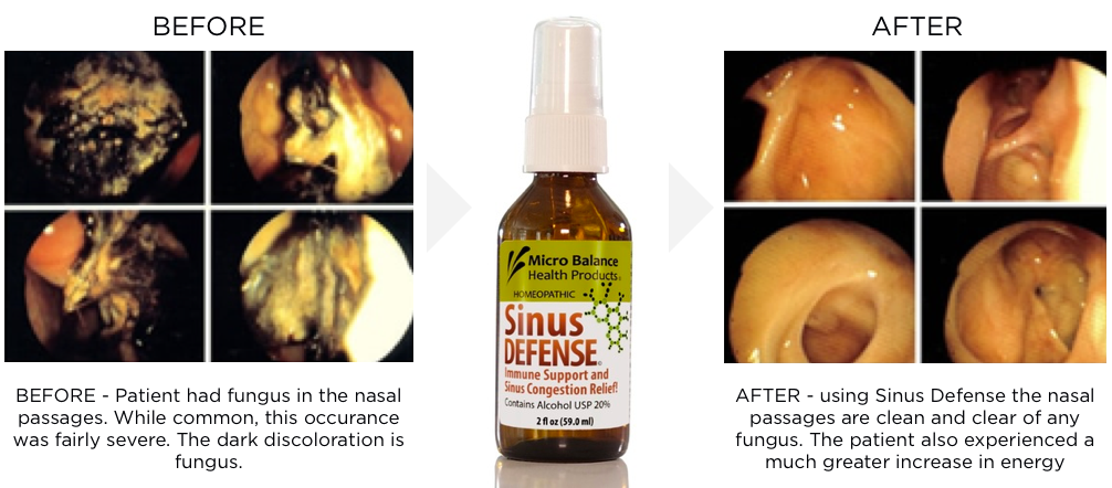endoscopic fungal sinusitis cured with sinus defense.png