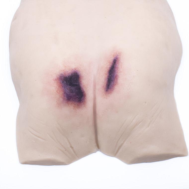 PI Buttock Overlay - Suspected Deep Tissue Injury