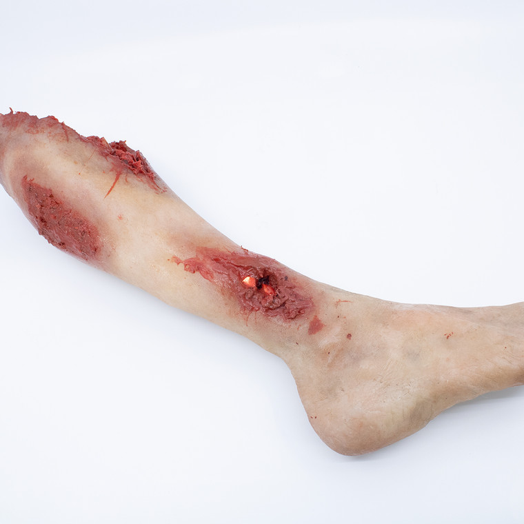 Lifecast Lower Leg