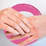 Boiron Homeopathic Medicine Cicadermine - Skin and Nasal Irritations 18g | 774016840164