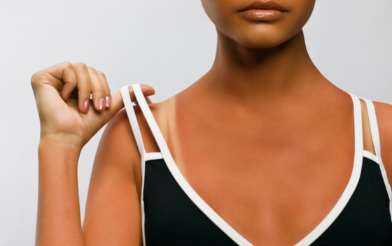 Is After-Sun Care Important? Everything You Need to Know