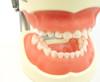 Full Primary Dentition Typodont Model
