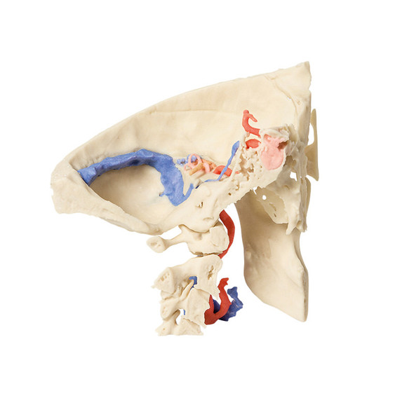 Temporal Bone Model, Set of 3 - 3D Printed Cadaver