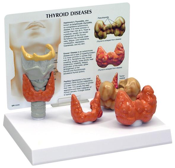 Thyroid model - GPI 3150