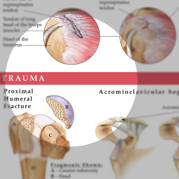 Anatomy and Injuries of the Shoulder - detail