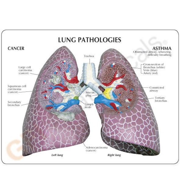 Lung Set with Pathologies