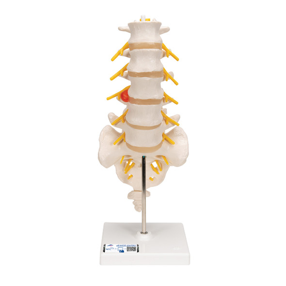 Lumbar Spinal Column with Dorso-Lateral Prolapsed Disc