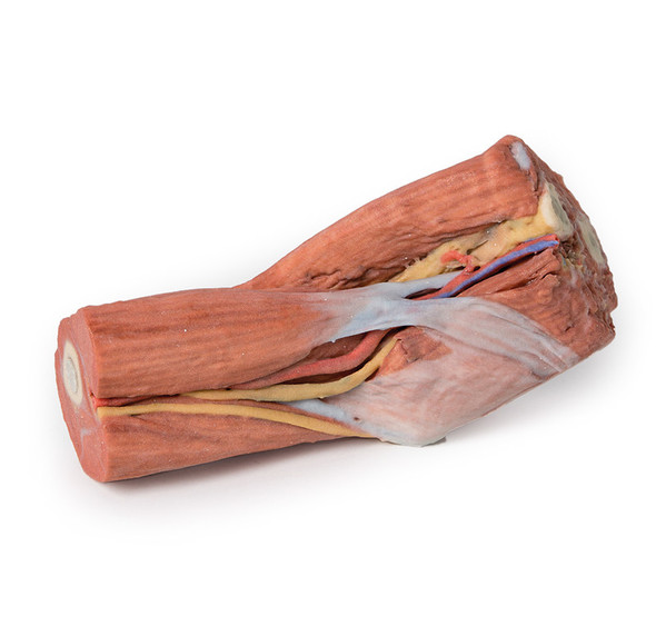 Cubital fossa - muscles, large nerves and the brachial artery - 3D Printed Cadaver