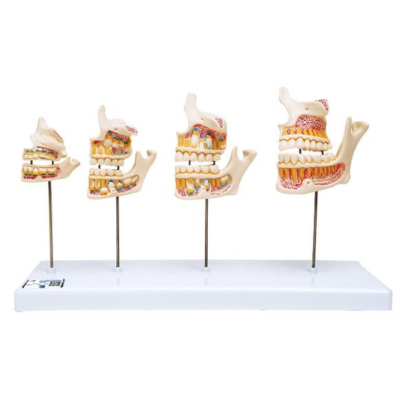 Dentition Development Model
