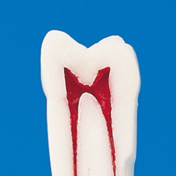 Nissin Permanent Teeth with Dental Pulp - cross section