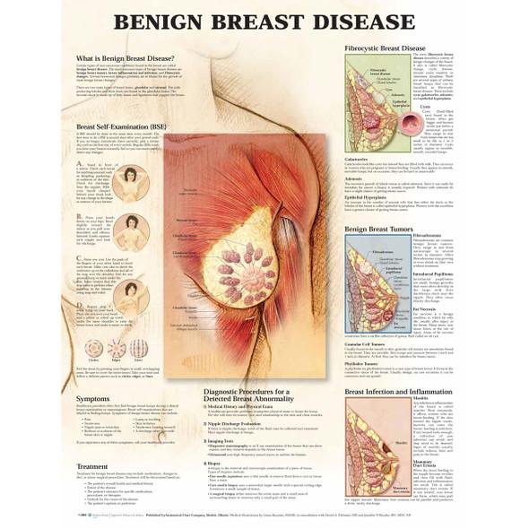Benign Breast Disease