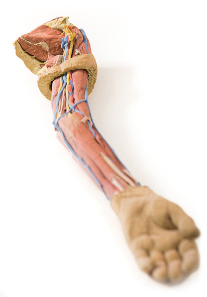 Upper Limb - 3D Printed Cadaver