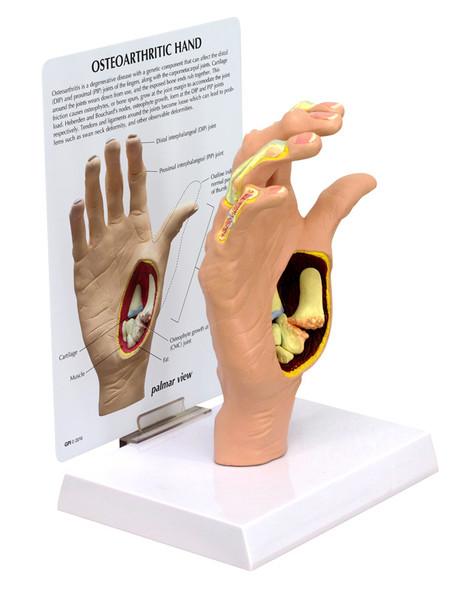 Osteoarthritis (OA) Hand