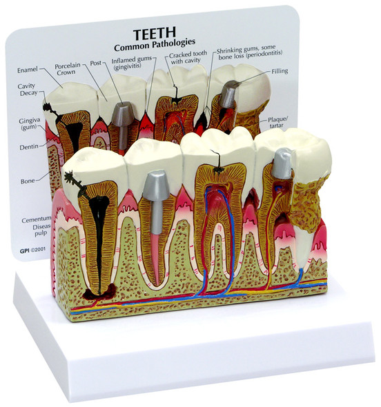 Model of the Teeth