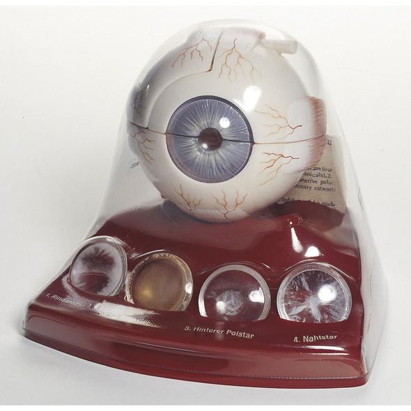 Cataract Eye Model 1