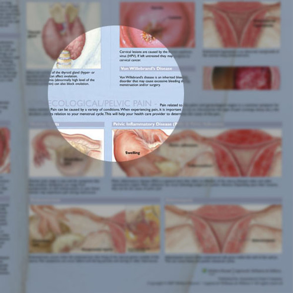 Common Gynecological Disorders Anatomical Chart - Detail