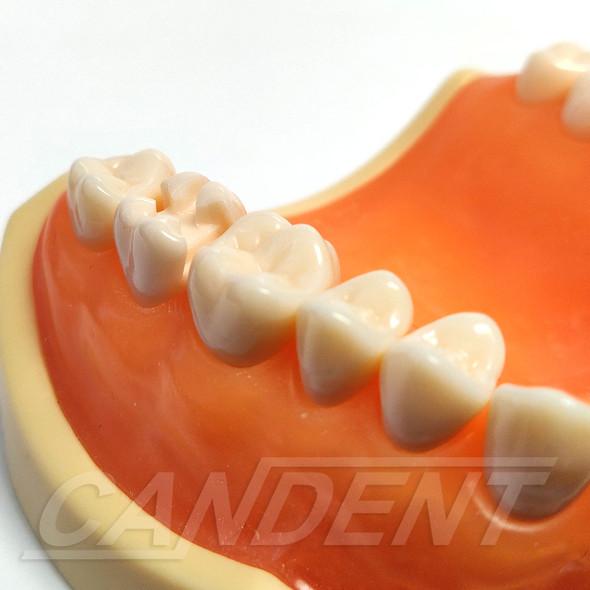 Preprepared Tooth - 2.7 (#15) MODB Prep - UL76A