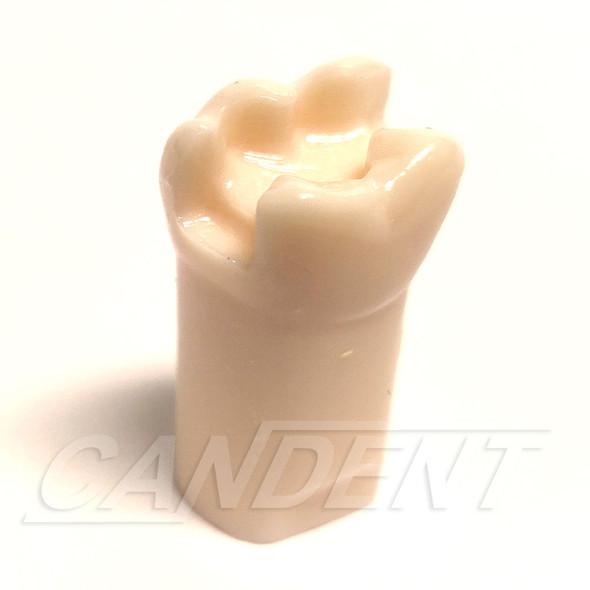 Preprepared Tooth - 3.6 (#19) MOD Prep - LL66H